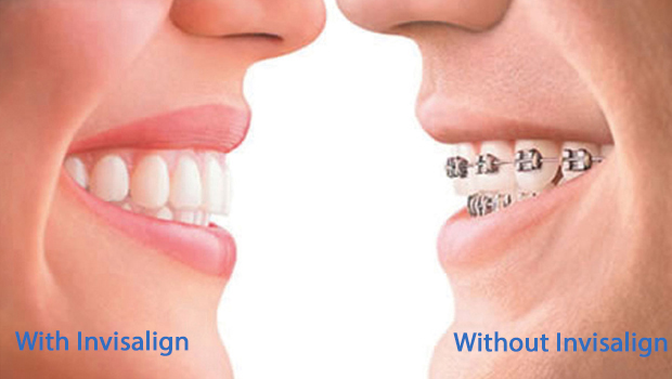 Invisalign in Midtown