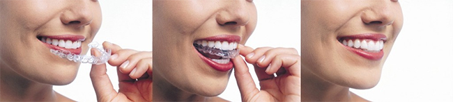Midtown East Invisalign
