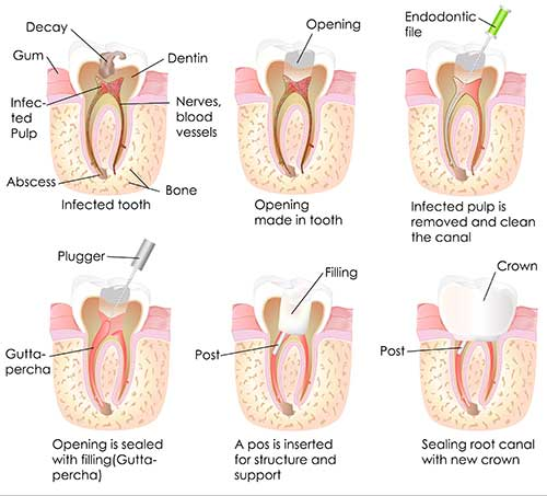 Midtown Root Canal