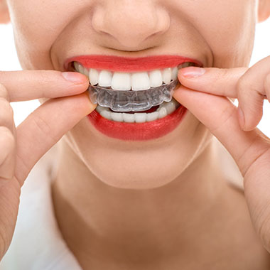 Invisalign Midtown East